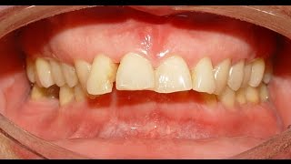 Orthodontic Treatment of Deep Overbite & Increased Overjet - Mousa 37 years
