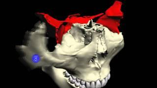 要の蝶 蝶形骨周辺の骨 Bone around  Sphenoid bone. thumbnail