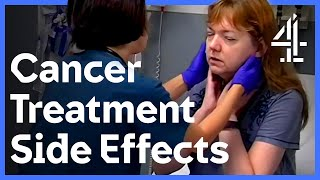 Battling Skin Cancer And Treatment Side Effects | 24 Hours in A\u0026E