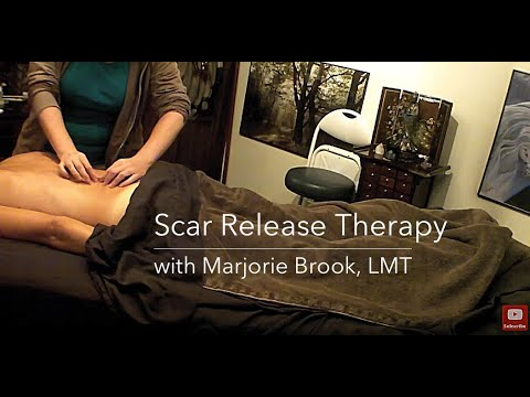 Scar Release Therapy for a Spinal Fusion Scoliosis Scar