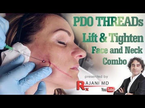 PDO Thread Lift to Tighten Face and Neck