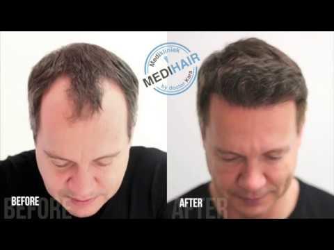 Hair Transplant Before&After - Medikliniek Amsterdam