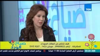 صباح الورد - فائدة البطاطس فى إزالة الهالات السوداء تحت العين من د/كريمة الشامي