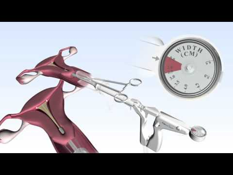 NovaSure 3D Procedure Animation and RF Controller Set-Up