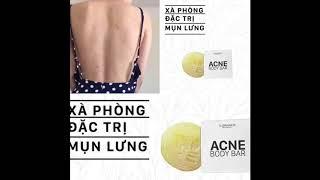 Xà phòng trị mụn lưng Elizavenca Acne Body Bar chỉ #170K dứt mụn sau 2 tuần - Hotline 0932018020