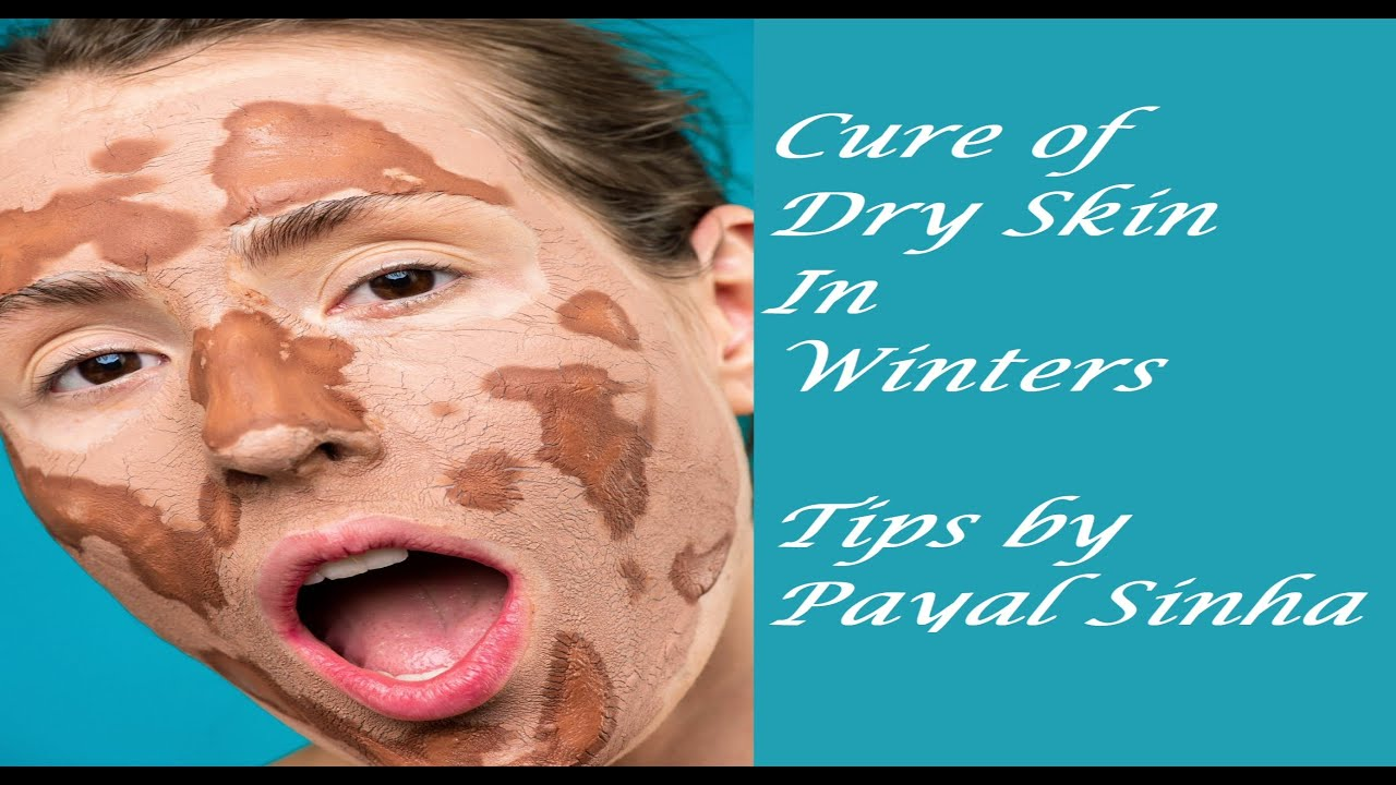 Skin Care tips by Payal Sinha How to tackle dry Skin in winters