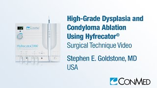 Repeat youtube video Dr. Stephen Goldstone - High Grade Dysplasia and Condyloma Ablation Using Hyfrecator® - ConMed