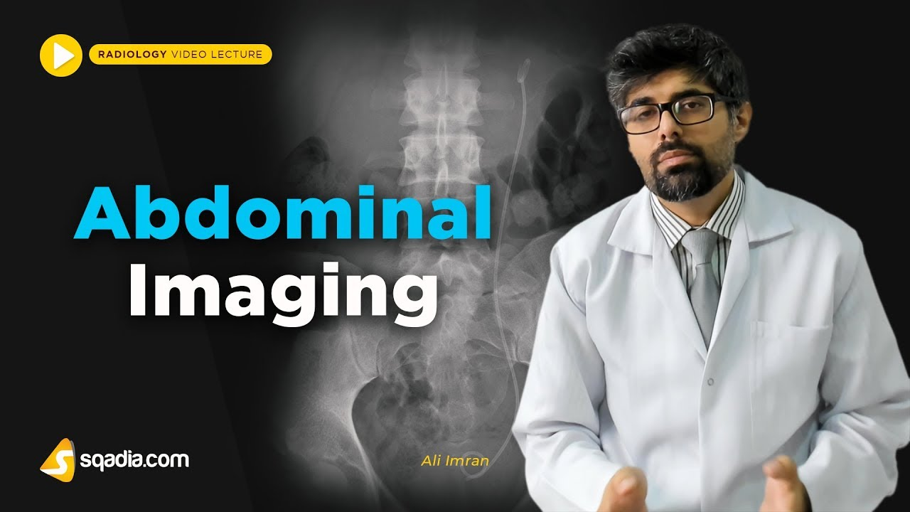 Abdominal Imaging | Radiology Lectures | Medical Education | V-Learning | sqadia.com #MedicalRadiology