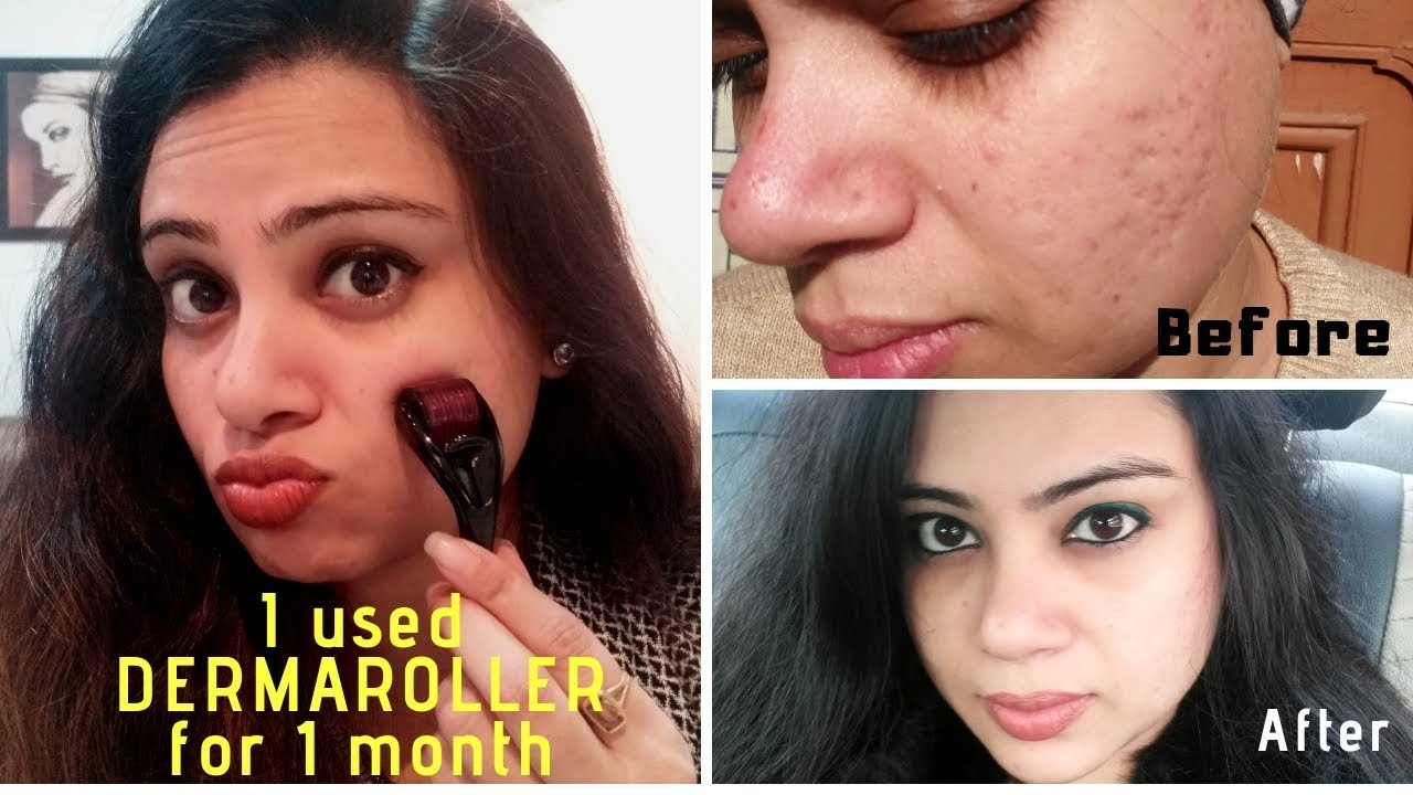 How to Use a Derma Roller for Acne Scars   Micro Needling   Before & After    Madams Choice