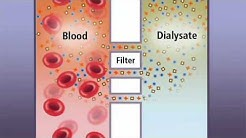 hqdefault - How Does Ultrafiltration Work In Dialysis