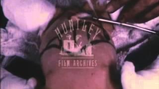 Haemolytic Disease in the Newborn.  Archive film 4696