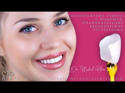 © Видео эстетического преображения улыбки. Индивидуальные керамические реставрации виниры, люминиры.