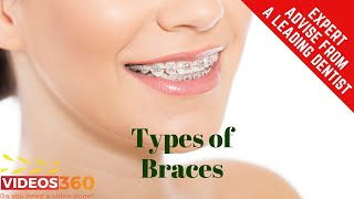 Now Trending - Types of Braces available at Life Smiles Dental Care – Dr. Timothy Schmidt