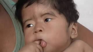 Maranhão Urgente- O menino de Gelo