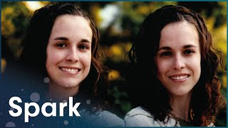 Living With An Identical Twin | Two Of A Kind | Spark