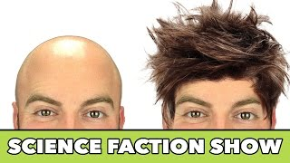 Is There a Cure For BALDNESS ? - Science FACTion Show