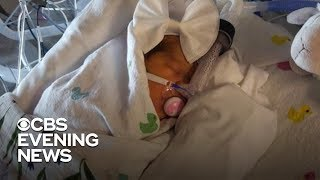 Baby born after undergoing experimental surgery in the womb