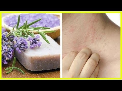 Special Homemade Soap For Sensitive Skin And Dermatitis