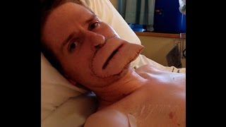 Alex Lewis who lost four limbs and part of his face to flesh-eating bug gets new lips