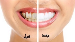 بالفيديو : أفضل وأسرع طريقة لتبييض الاسنان وازالة رائحة الفم مضمونة