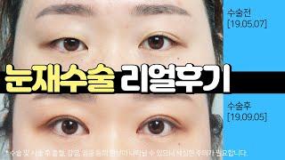 부산눈재수술 짝눈교정 쌍꺼풀수술 후기 [서면 포시즌성형…
