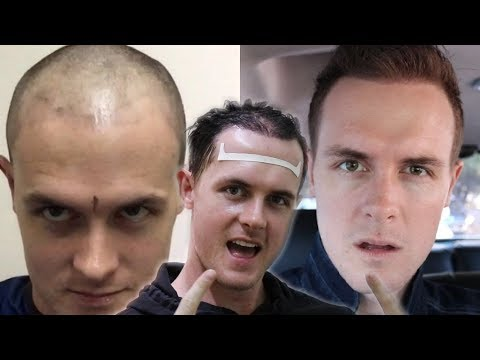 How I grew my hair back fast (Male Pattern Baldness) Hair Transplant