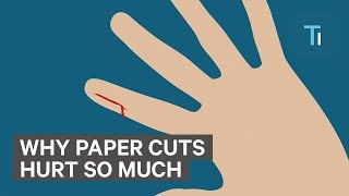Why Paper Cuts Hurts So Much