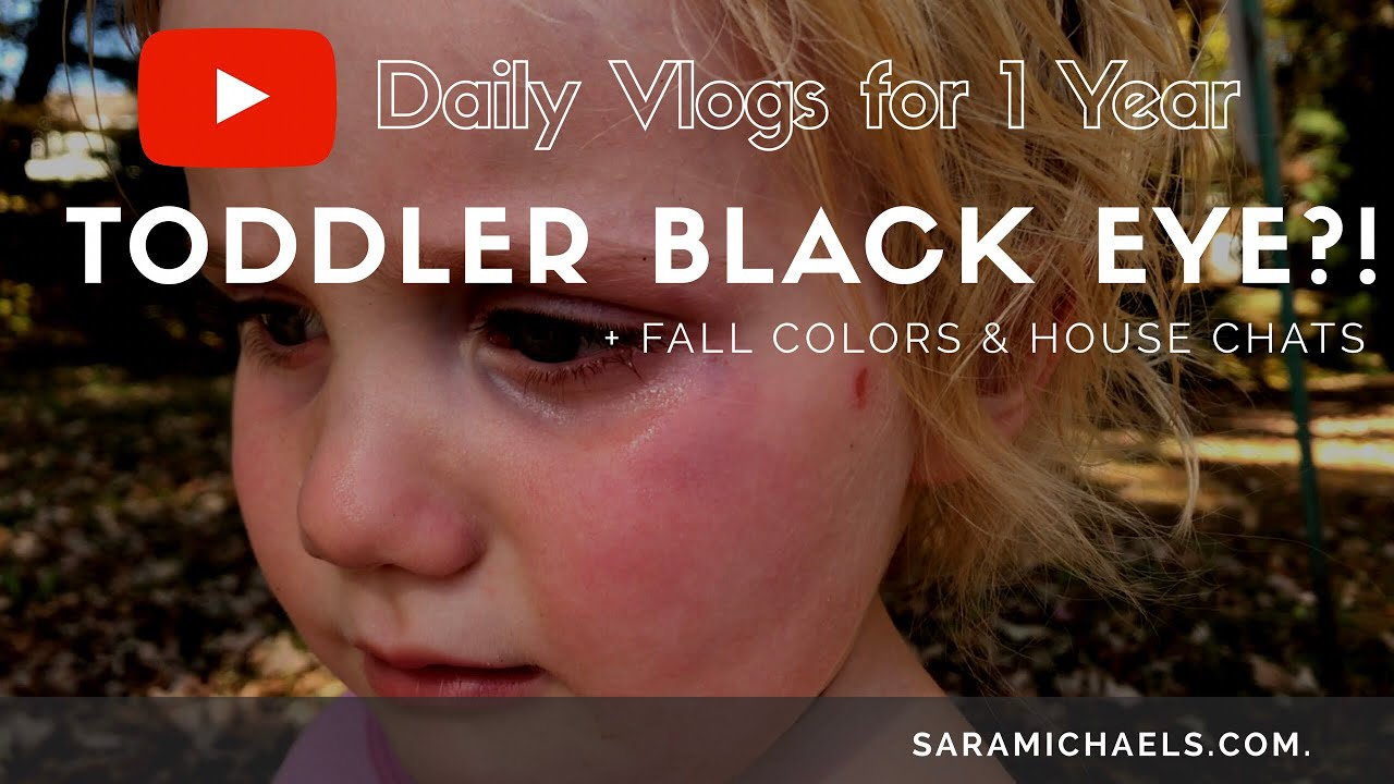 Toddler Black Eye?! + Fall Colors & House Chat \\\\ 10.19.17 ...