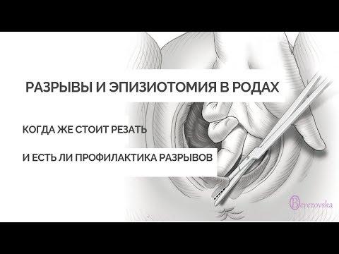 Разрывы + эпизиотомия в родах - Др. Елена Березовская -