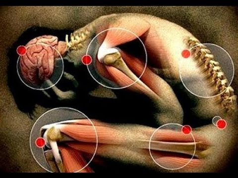 Resultado de imagen para dolores en las articulaciones