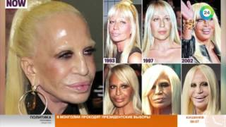 Жертва красоты Донателла Версаче - МИР24