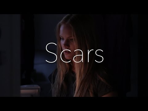 Scars Short Film - A Day in the Life of a Diabetic - Jenna Michelle