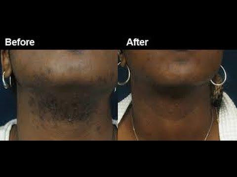 Black Skin Care & Laser Miami