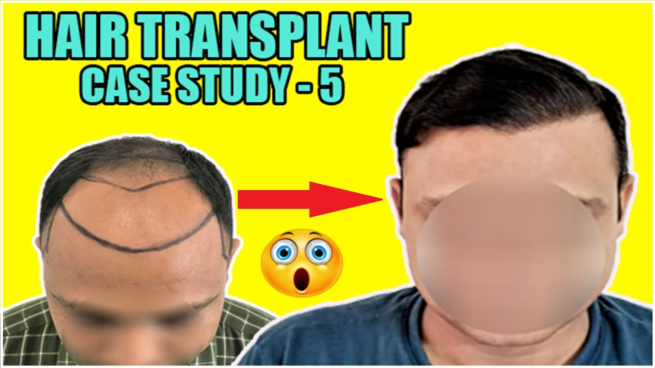 Hair Transplant Case Study in India (2020)| Best hair transplant result|