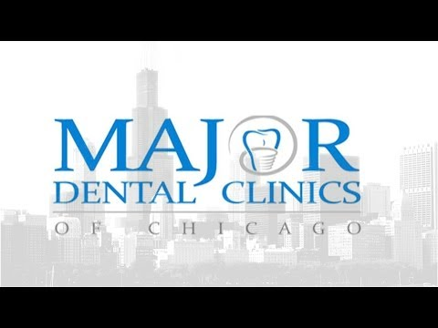All on 4 dental implants Chicago - Major Dental Clinics of Chicago