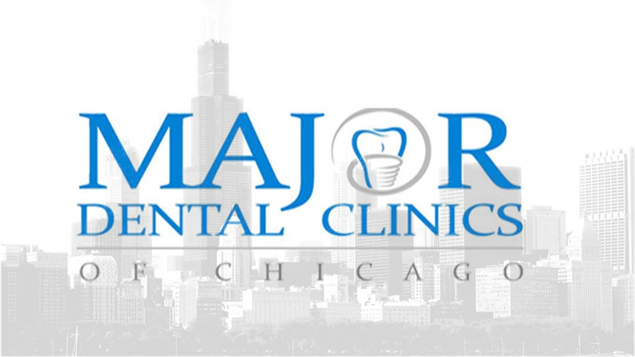 All On 4 Dental Implants Chicago  Major Dental Clinics Of. Rentdebt Automated Collections. Garage Door Services Okc Online Ad Placement. Vegetables With The Highest Protein. Stonegate Mortgage Company Oregon Rn Programs. Small Voip Phone System Quicken Loans Contact. Home Alarm Systems Austin Popcorn Weight Loss. College Grant Applications Online. Above Ground Pool Repair Wall