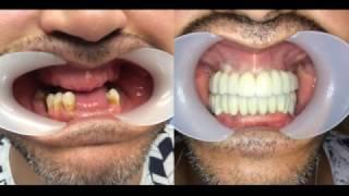 prothése totale sur implants dentaires