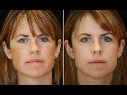 Freckle Removal Nyc 212 644 6454 Freckles Nyc New