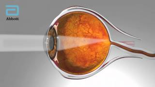 Reclaiming vision: new technology for cataract surgeons and patients