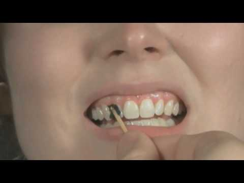 Tooth Wax Tutorial