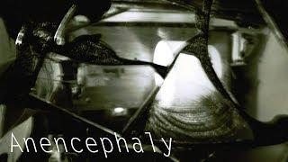 anencephaly creepypasta