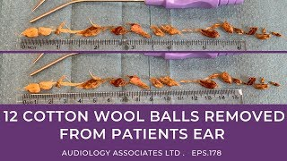 12 COTTON WOOL BALLS REMOVED FROM PATIENTS EARS - EP178