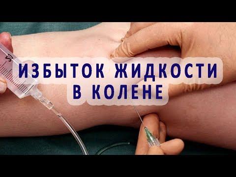 Избыток суставной (синовиальной) жидкости в коленном суставе