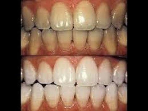 Subhanallah 4 Cara Memutihkan Gigi Yang Sudah Kuning Paling Nyata