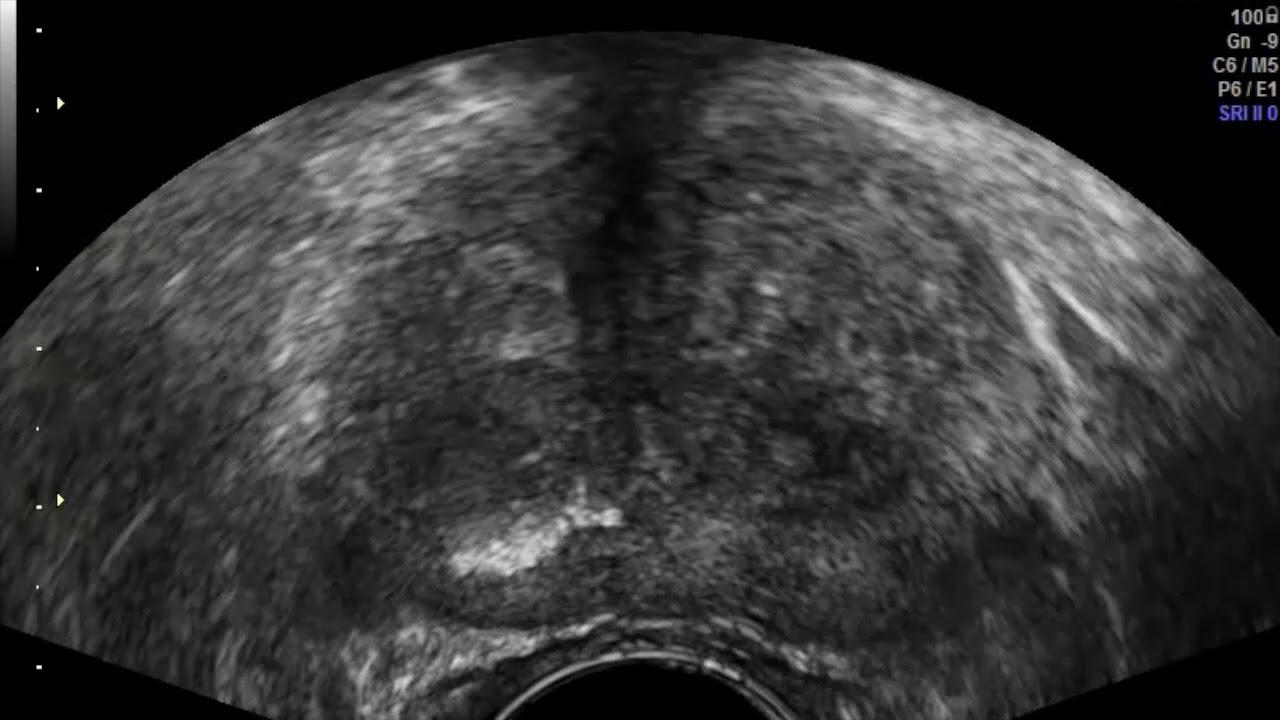 MR-célzott vs. véletlenszerű TRUS-vezérelt prosztata biopszia