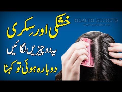How To Get Rid Of Dandruff In Just One Wash || Dandruff Home Remedy || Dandruff Treatment || In Urdu