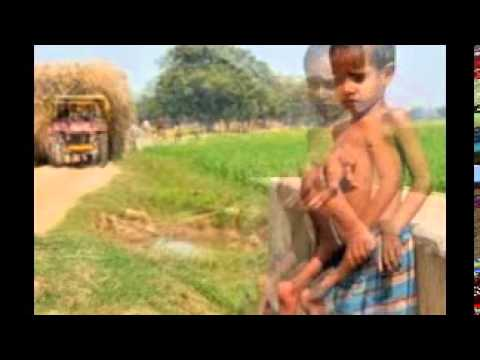 Download The Boy with 8 Limbs in India