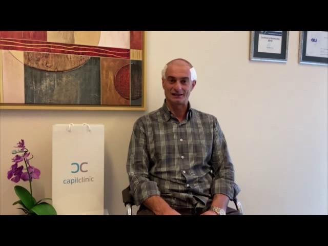 Testimonianza di Guiseppe dopo aver realizzato il trapianto di capelli - CapilClinic