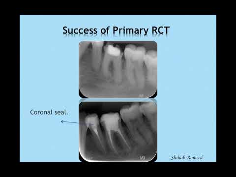 Dr. Shihab Romeed: Dental implants and root canal treatments: which is better?