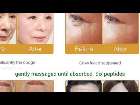 efero-snail-face-cream-whitening-anti-wrinkle-+argireline-serum-instantly-ageless-+gold-eye-mask